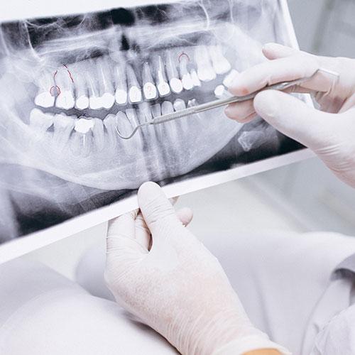 Fogászati röntgenFogászati röntgen