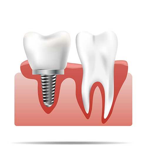 Fogbeültetés / implantológia